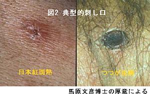 病 症状 ツツガムシ つつが虫病|厚生労働省